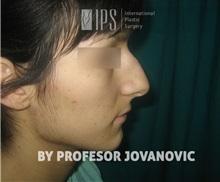 Rhinoplasty Before Photo by Milan Jovanovic, MD, PhD; Belgrade,  - Case 37829