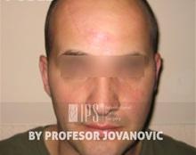 Scar Revision After Photo by Milan Jovanovic, MD, PhD; Belgrade,  - Case 37830