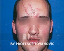 Scar Revision Before Photo by Milan Jovanovic, MD, PhD; Belgrade,  - Case 37830