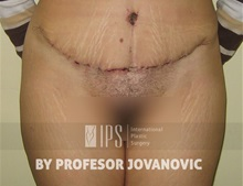 Tummy Tuck After Photo by Milan Jovanovic, MD, PhD; Belgrade,  - Case 37831
