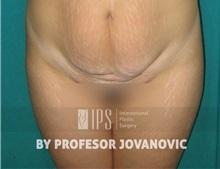Tummy Tuck Before Photo by Milan Jovanovic, MD, PhD; Belgrade,  - Case 37831