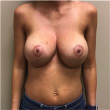 Breast Lift After Photo by Nicholas Leonardi, DO; Memphis, TN - Case 42440