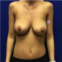 Breast Lift Before Photo by Nicholas Leonardi, DO; Memphis, TN - Case 42440