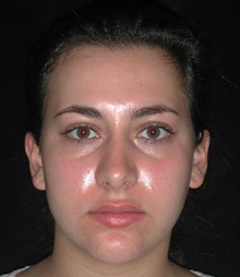 Rhinoplasty After Photo by Frederick Lukash, MD, FACS, FAAP; East Hills, NY - Case 35048