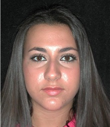 Rhinoplasty Before Photo by Frederick Lukash, MD, FACS, FAAP; East Hills, NY - Case 35048
