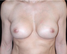 Breast Augmentation After Photo by Frederick Lukash, MD, FACS, FAAP; East Hills, NY - Case 35058