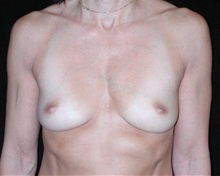 Breast Augmentation Before Photo by Frederick Lukash, MD, FACS, FAAP; East Hills, NY - Case 35058