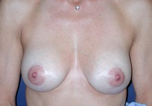 Breast Augmentation After Photo by Frederick Lukash, MD, FACS, FAAP; East Hills, NY - Case 35063