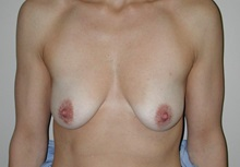 Breast Augmentation Before Photo by Frederick Lukash, MD, FACS, FAAP; East Hills, NY - Case 35063
