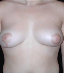 Breast Augmentation After Photo by Frederick Lukash, MD, FACS, FAAP; East Hills, NY - Case 35064