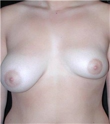 Breast Augmentation Before Photo by Frederick Lukash, MD, FACS, FAAP; East Hills, NY - Case 35064
