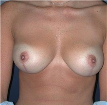 Breast Reduction After Photo by Frederick Lukash, MD, FACS, FAAP; East Hills, NY - Case 35067