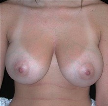 Breast Reduction Before Photo by Frederick Lukash, MD, FACS, FAAP; East Hills, NY - Case 35067