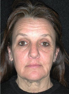 Facelift Before Photo by Frederick Lukash, MD, FACS, FAAP; East Hills, NY - Case 35071