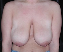 Breast Lift Before Photo by Frederick Lukash, MD, FACS, FAAP; East Hills, NY - Case 35118