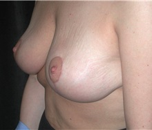 Breast Lift After Photo by Frederick Lukash, MD, FACS, FAAP; East Hills, NY - Case 35118