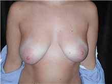 Breast Reduction Before Photo by Frederick Lukash, MD, FACS, FAAP; East Hills, NY - Case 35121