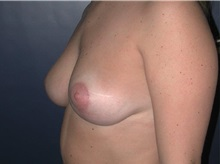 Breast Reduction After Photo by Frederick Lukash, MD, FACS, FAAP; East Hills, NY - Case 35121