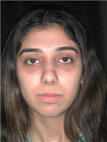 Rhinoplasty After Photo by Frederick Lukash, MD, FACS, FAAP; East Hills, NY - Case 35122