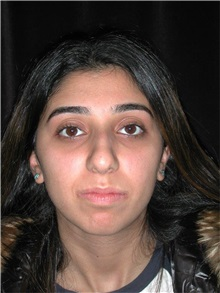 Rhinoplasty Before Photo by Frederick Lukash, MD, FACS, FAAP; East Hills, NY - Case 35122