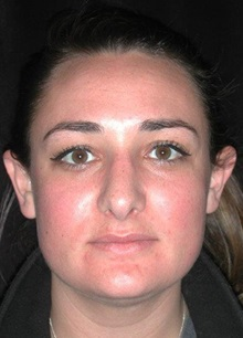 Rhinoplasty After Photo by Frederick Lukash, MD, FACS, FAAP; East Hills, NY - Case 35124