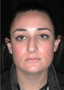 Rhinoplasty Before Photo by Frederick Lukash, MD, FACS, FAAP; East Hills, NY - Case 35124