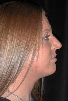 Rhinoplasty After Photo by Frederick Lukash, MD, FACS, FAAP; East Hills, NY - Case 35125