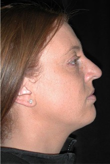 Rhinoplasty Before Photo by Frederick Lukash, MD, FACS, FAAP; East Hills, NY - Case 35125