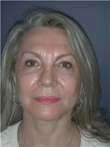 Facelift After Photo by Frederick Lukash, MD, FACS, FAAP; East Hills, NY - Case 35129