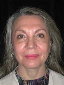 Facelift Before Photo by Frederick Lukash, MD, FACS, FAAP; East Hills, NY - Case 35129