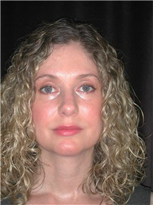 Rhinoplasty After Photo by Frederick Lukash, MD, FACS, FAAP; East Hills, NY - Case 35132