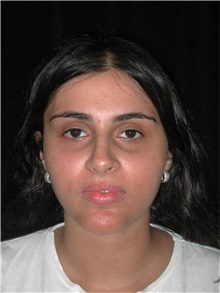 Rhinoplasty After Photo by Frederick Lukash, MD, FACS, FAAP; East Hills, NY - Case 35139