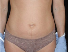 Tummy Tuck Before Photo by Frederick Lukash, MD, FACS, FAAP; East Hills, NY - Case 35140