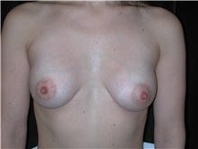 Breast Augmentation After Photo by Frederick Lukash, MD, FACS, FAAP; East Hills, NY - Case 35146
