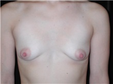 Breast Augmentation Before Photo by Frederick Lukash, MD, FACS, FAAP; East Hills, NY - Case 35146