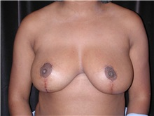 Breast Reduction After Photo by Frederick Lukash, MD, FACS, FAAP; East Hills, NY - Case 35147