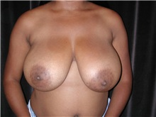 Breast Reduction Before Photo by Frederick Lukash, MD, FACS, FAAP; East Hills, NY - Case 35147