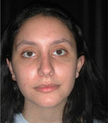 Rhinoplasty After Photo by Frederick Lukash, MD, FACS, FAAP; East Hills, NY - Case 35151