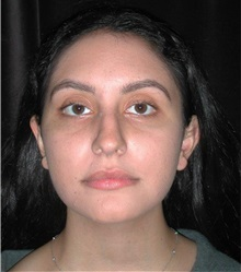 Rhinoplasty Before Photo by Frederick Lukash, MD, FACS, FAAP; East Hills, NY - Case 35151