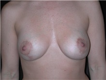 Breast Lift After Photo by Frederick Lukash, MD, FACS, FAAP; East Hills, NY - Case 35258