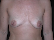 Breast Lift Before Photo by Frederick Lukash, MD, FACS, FAAP; East Hills, NY - Case 35258