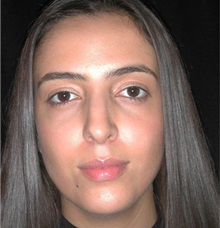 Rhinoplasty After Photo by Frederick Lukash, MD, FACS, FAAP; East Hills, NY - Case 35421