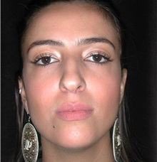 Rhinoplasty Before Photo by Frederick Lukash, MD, FACS, FAAP; East Hills, NY - Case 35421