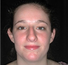 Rhinoplasty Before Photo by Frederick Lukash, MD, FACS, FAAP; East Hills, NY - Case 37615