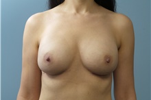 Breast Reconstruction After Photo by C. Andrew Salzberg, MD; New York, NY - Case 39375