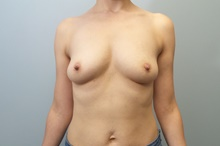 Breast Reconstruction Before Photo by C. Andrew Salzberg, MD; New York, NY - Case 39375