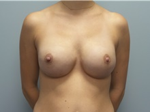 Breast Reconstruction After Photo by C. Andrew Salzberg, MD; New York, NY - Case 39376