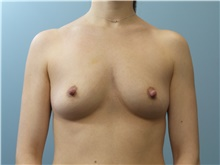Breast Reconstruction Before Photo by C. Andrew Salzberg, MD; New York, NY - Case 39376