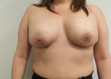 Breast Reconstruction After Photo by C. Andrew Salzberg, MD; New York, NY - Case 39379