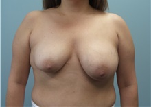 Breast Reconstruction Before Photo by C. Andrew Salzberg, MD; New York, NY - Case 39379